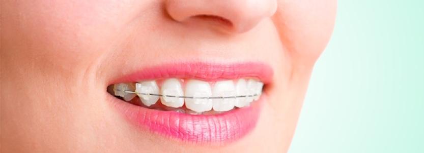 Orthodontie les techniques